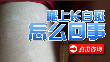 南京白癜风医院医师解答:白癜风的诱发原因是什么