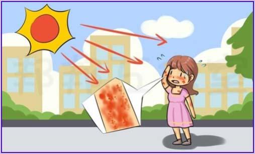 白癜风患者喜欢吃番茄对病情有影响吗