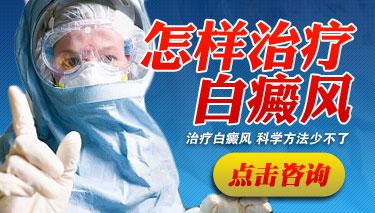 白癜风患者如何正确去治疗