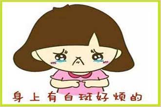 小娃娃手上有白癜风的症状是什么